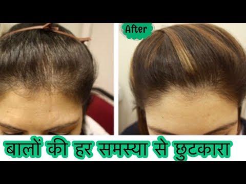 DIY Hair Growth Oil - Stop Hair Fall, Hair Loss | How to grow Long Thick Hair Naturally