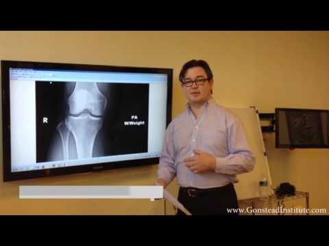 Gonstead - Intense knee (Meniscus) pain saved from surgery by Gonstead method