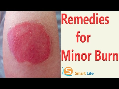 Best Home Remedies For Minor Burns