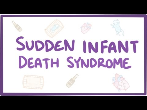 Sudden infant death syndrome (SIDS) - causes, symptoms, diagnosis, treatment, pathology