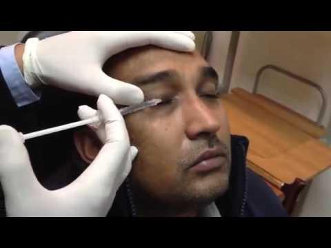 BOTOX treated Hemifacial Spasm