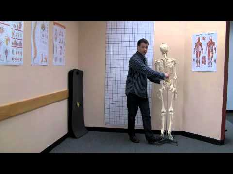 Scoliosis lumbar