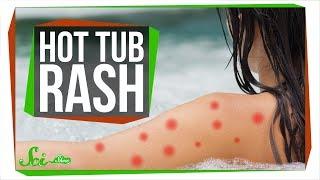 Can Hot Tubs Make You Sick?