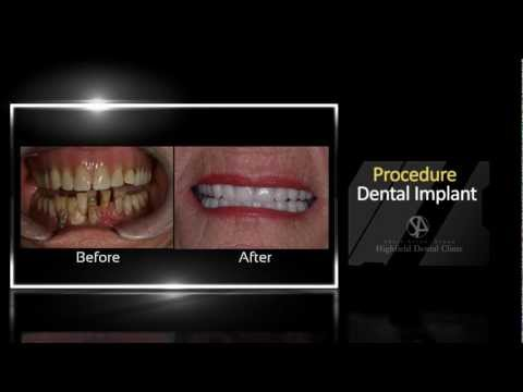 Implant Dentist Birmingham, Before and After | Call Us 0121 285 4889