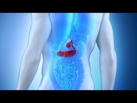 Dr. David Samadi - Find Out The Causes & Symptoms of Pancreatitis