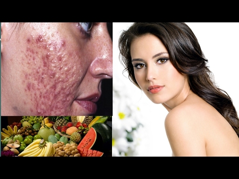 Top 10 Foods For Healthy Skin and Hair | Clean Face and Make Healthy