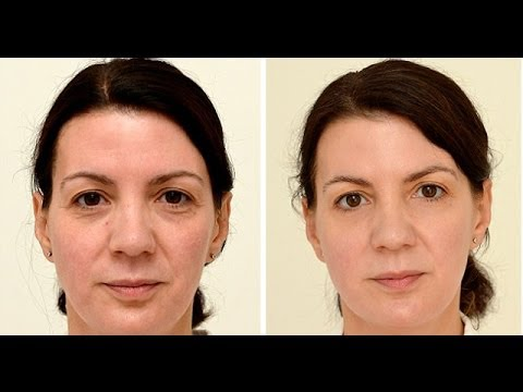 Drinking three liters of water a day gives you younger skin: study