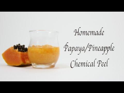 Homemade Chemical Facial Peel