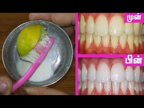 2 நிமிடங்களில் பற்களில் இருக்கும் கறை மரைய | Teeth whitening in Tamil |  Beauty Tips