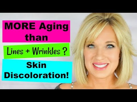 TREATING Body Hyperpigmentation! FADE Discoloration with BODY LOTIONS! (whitening)
