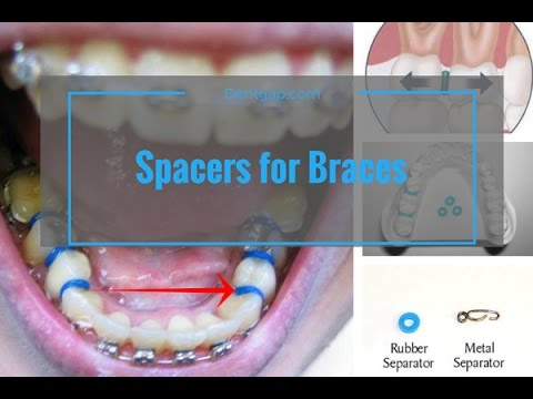 Spacer For Braces - Do They Hurt ? Check Live View