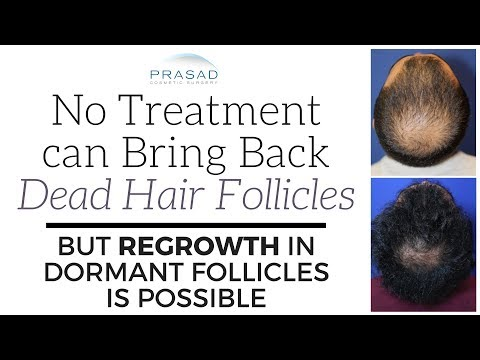 Why No Treatment can Revive Dead Hair Follicles, but Regrowth of Dormant Follicles is Possible