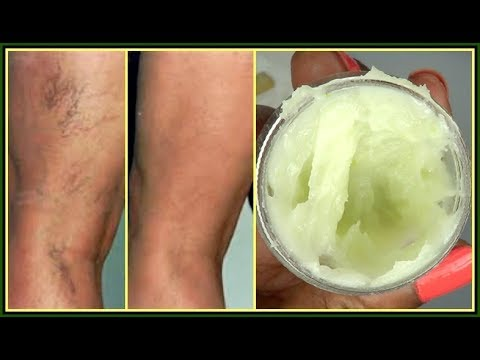 YOU WILL NOT BELIEVE WHAT I USE TO GET RID OF MY VARICOSE + SPIDER VEINS |Khichi Beauty