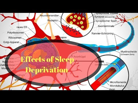 The Effects of Sleep Deprivation on Your Body.