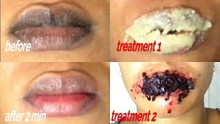 EASY 2 MINUTES STEPS REMOVE DARK LIPS GET SOFT PINK LIPS FAST