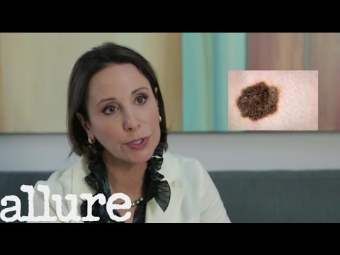 When You Should Get A Mole Checked | Dr. Ava Shamban