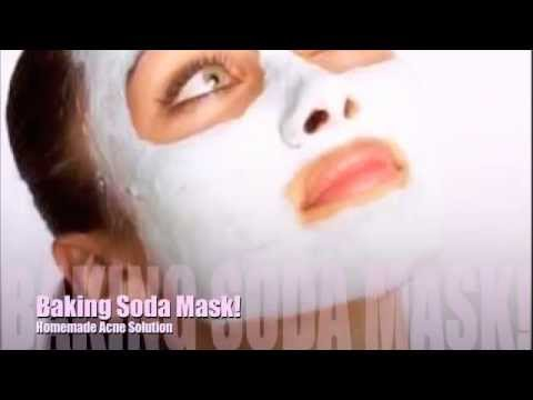 Baking Soda Mask! (Helps with acne)