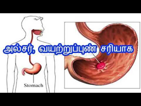 அல்சர், வயற்றுப்புண் சரியாக stomach ulcer home remedy in tamil| paarambariya maruthuvam for ulcer