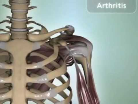 Shoulder Arthritis - DePuy Videos