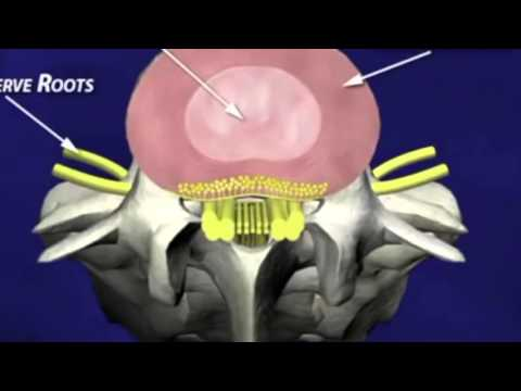 Non Surgical Disc Decompression Technology Works!
