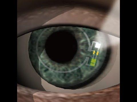 Smart contact lens measures sugar in tears