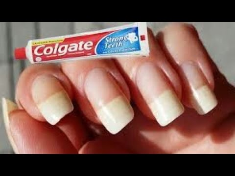 Very effective home remedy to grow your nails healthy and long
