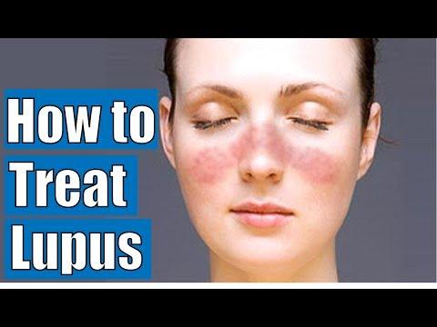 How to Diagnose Lupus | Lupus treatment