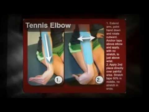 Are You In Need of Tennis Elbow Treatment