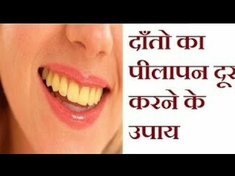 Tips to get rid from yellow teeth || Whiten yellow teeth home remedies
