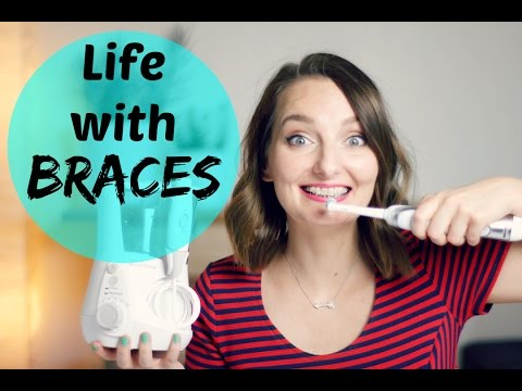 Life with Braces | My Experience and Helpful Tips