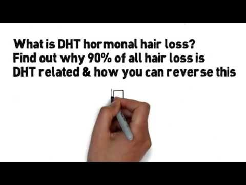 Stop Wasting Money On Useless Hair Growth Products - The Real Reason For Balding Heads Is Hormonal
