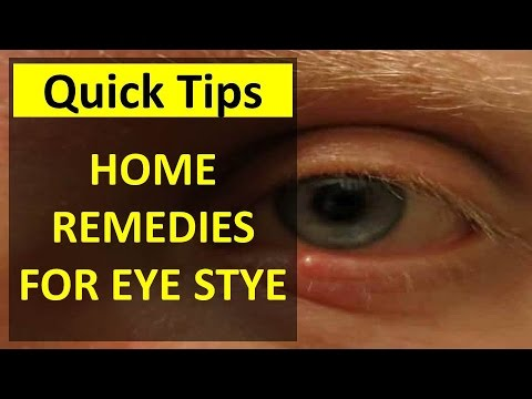 How to Treat a Stye in Your Eye - Home Remedies for a Stye - Home Remedies for Eye Stye