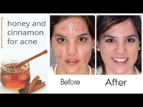 Honey And Cinnamon Mask for Acne | how to remove pimples from face