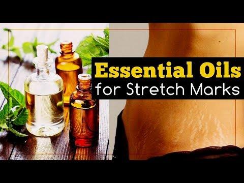 6 Essential Oils for Stretch Marks