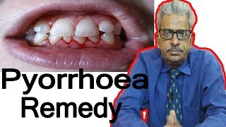 Pyorrhea - Discussion and Treatment in Homeopathy by Dr. P.S. Tiwari
