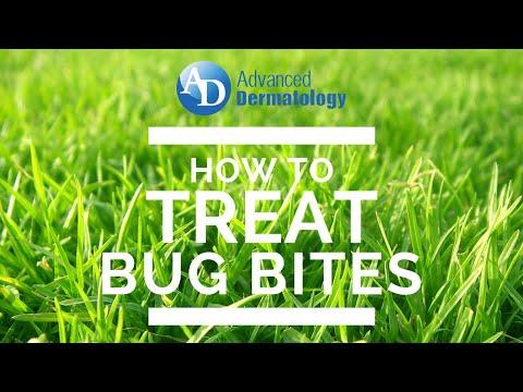 How to Treat Gnat Bites