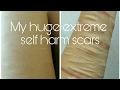 My extreme self harm scars - Huge Trigger Warning!!