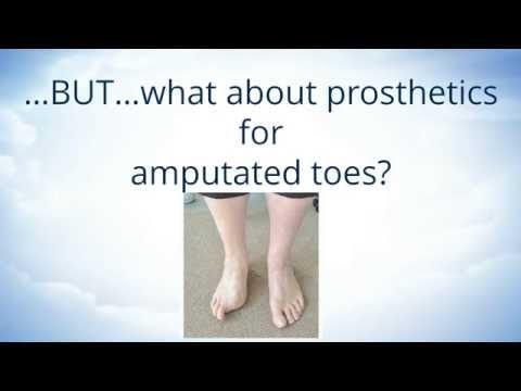 Toe Amputations and Orthotics
