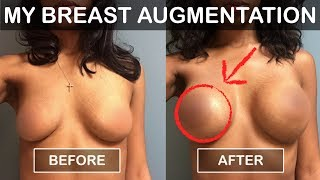 Download My Breast Augmentation | 2017 Video