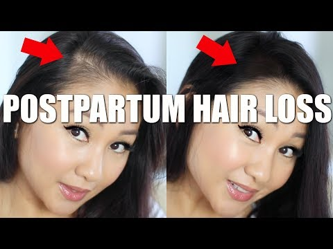 HOW TO HIDE POSTPARTUM HAIR LOSS!