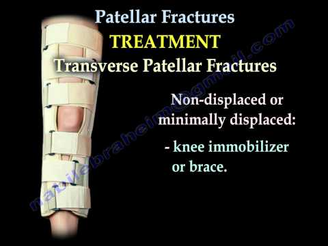 Patellar Fractures - Everything You Need To Know - Dr. Nabil Ebraheim