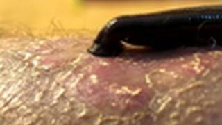 Leeches Cure | National Geographic