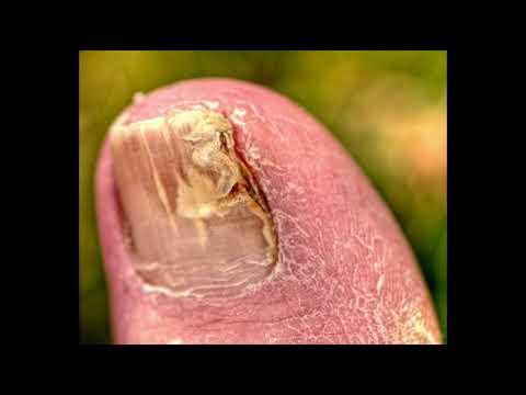 Toe Nail Fungus Solution: Toe Fungus Treatment Epsom Salt
