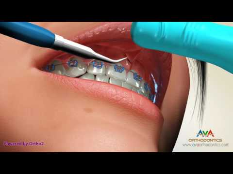 Frenectomy by Laser - Orthodontic Treatment