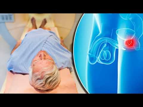 Digital Rectal Exam And PSA Test For Prostate Cancer- Screening Tests For Prostate Cancer