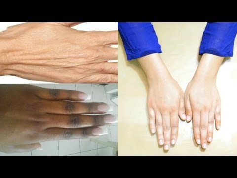 Get Fairer, Soft & Wrinkle Free Hands and Feet At Home in 20 Minutes | Get Rid Of Dark Knuckles