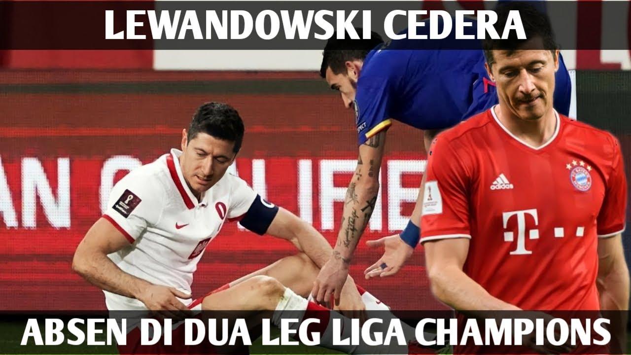 Gawat!! Lewandowski Cedera, Absen Bela Bayern vs PSG di Dua Leg Liga Champions
