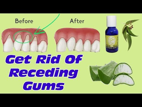 How To Grow Back Your Receding Gums With These Natural Remedies  - Best Treatment For Gum Diseases