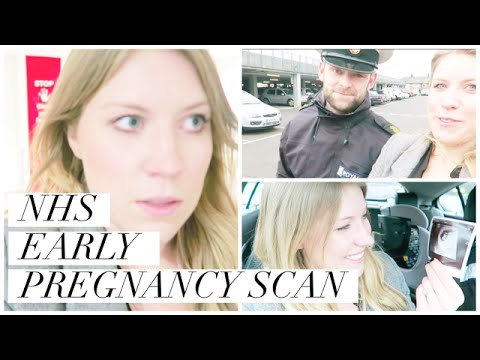 NHS EARLY PREGNANCY SCAN - THREATENED MISCARRIAGE | THIS MAMA LIFE