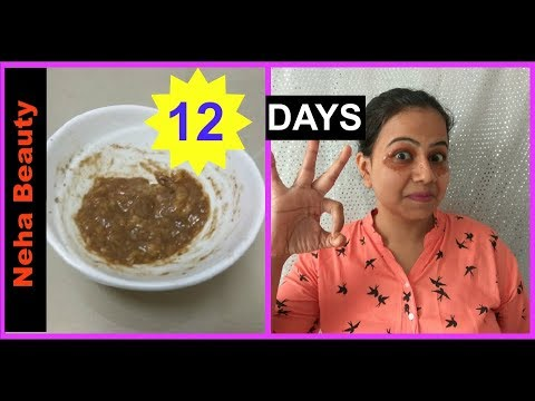 How to remove under eye Dark Circles naturally fast permanently at home |effective home remedy hindi